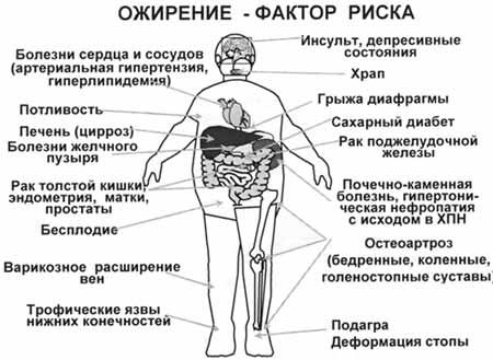 bolezni